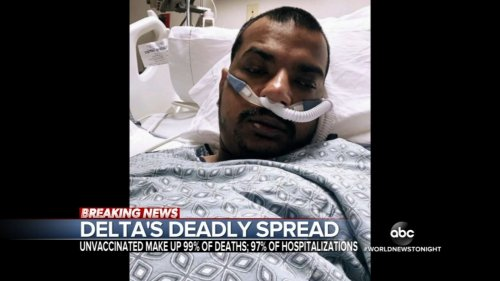 SoCal man, 34, who mocked vaccines dies of COVID-19