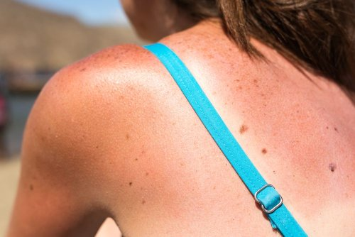 Factors That Increase Your Risk of Skin Cancer