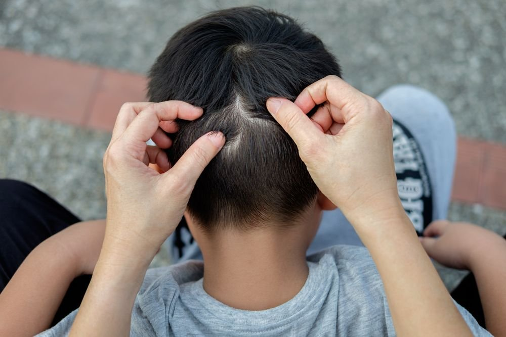 Lice-Busting Tips for Back to School