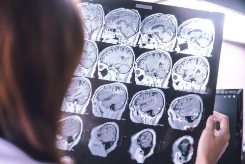 Be Mindful of These 6 Brain Atrophy Symptoms