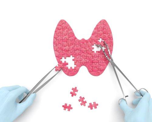 Treatments for Hyperthyroidism