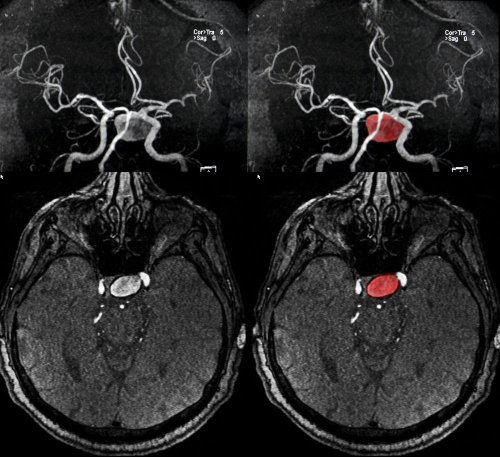 7 Key Differences and Similarities of Strokes and Aneurysms