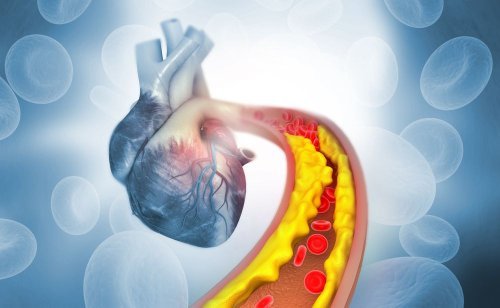 High Cholesterol Red Flags You Should Know - ActiveBeat