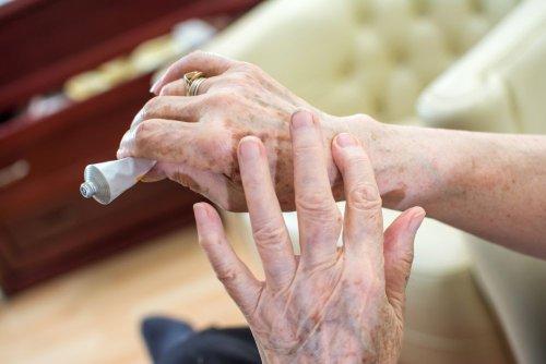 Over-The-Counter Creams For Treating Arthritis