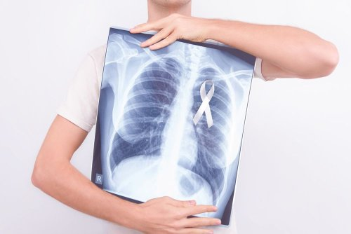 Lung Cancer: Early Signs and Symptoms