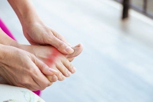 Early Signs of Gout