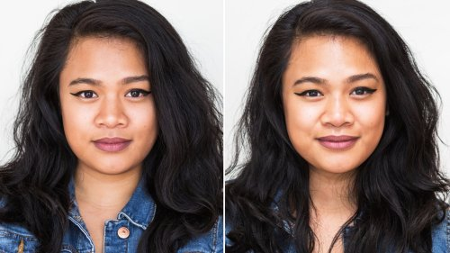 I Got a Non-Surgical Nose Job, and Here's What Happened