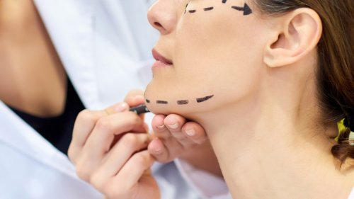 """The """"Thread Lift"""" Is the New (Cheap) Alternative to the Face-Lift"""