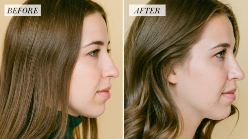 I Got Rhinoplasty at 25 — Here's What to Expect From a Nose Job