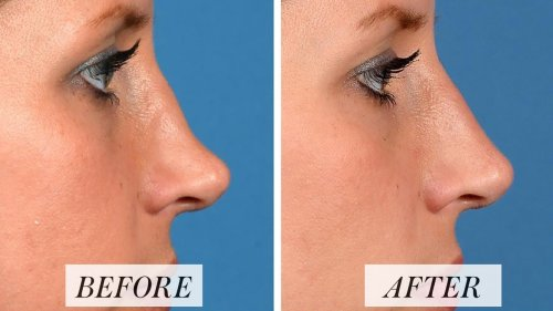 "Nonsurgical Rhinoplasty Is Everywhere These Days — But Are ""Liquid Nose Jobs"" Safe?"