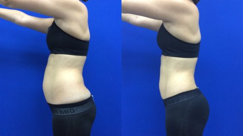 What Happened When I Tried Laser Liposuction