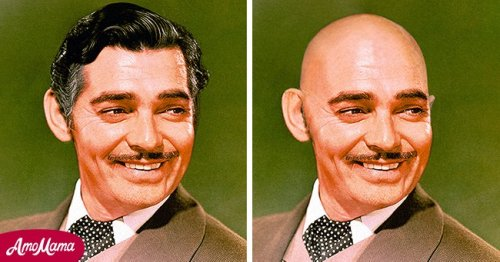 How Clark Gable, Marlon Brando, and Other Legendary Hollywood Actors Would Look without Hair