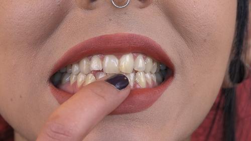 Síntomas que indican que tienes caries y que debes visitar al dentista - VÍDEO