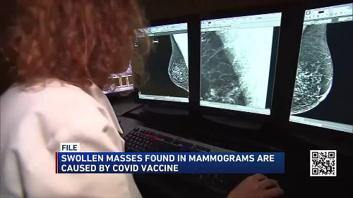 Study: Non-cancerous, swollen masses found in mammograms caused by COVID-19 vaccine