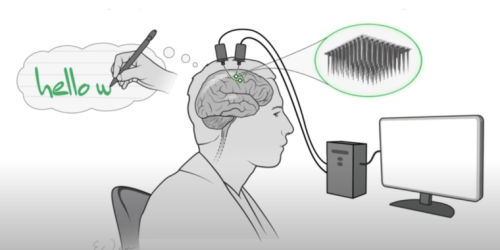 Neural implant lets paralyzed person type by imagining writing