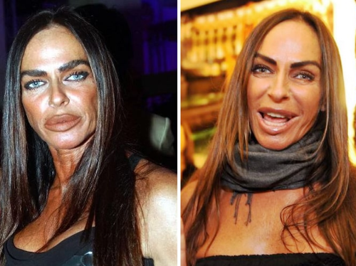 Once A Beautiful Italian Face Turned Out To Be A Freakish Fright, Michaela Romanini