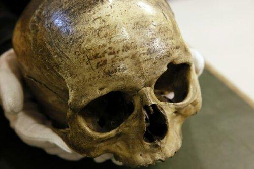 Was René Descartes a Victim of Skull Blasting?