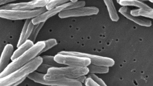 CDC investigating TB outbreak linked to spinal surgeries