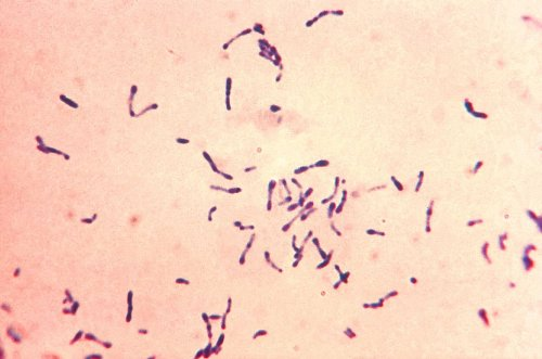 Diphtheria risks becoming major global threat again as it evolves antimicrobial resistance