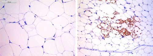 A drug already in use in humans corrects obesity in mice