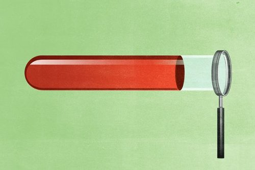 How a Simple Blood Test Could Reduce Cancer Deaths