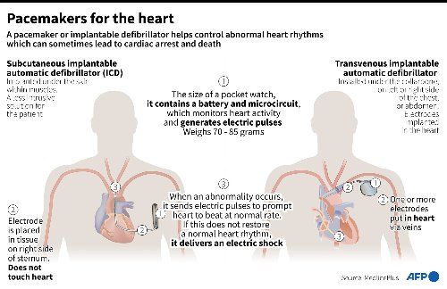 Pacemakers For The Heart