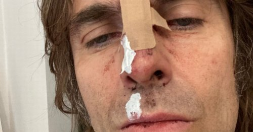 Liam Gallagher cancels Belsonic gig after injury