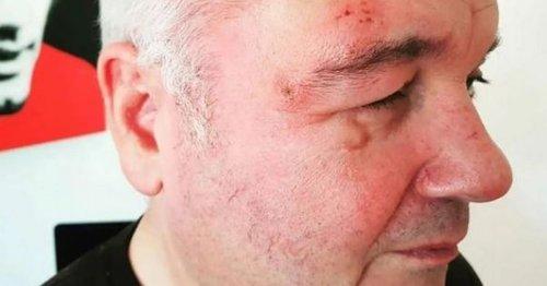 Eamonn Holmes says he 'ruined' son's wedding photos due to shingles