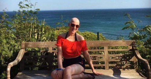 Co Antrim student shares experience with Alopecia to break hair loss stigma