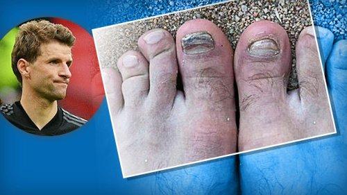 Müllers Fußnägel werden  nie wieder normal aussehen!