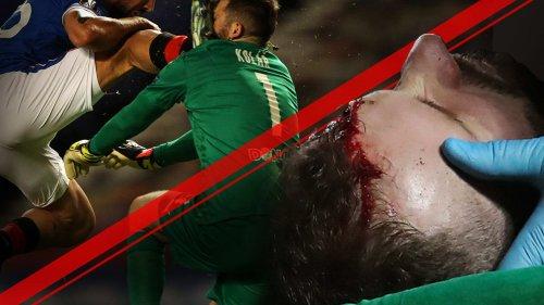Übler Kopf-Tritt in der Europa League
