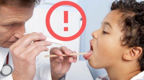Beliebtes Halsschmerz-Mittel für Kinder zurückgerufen