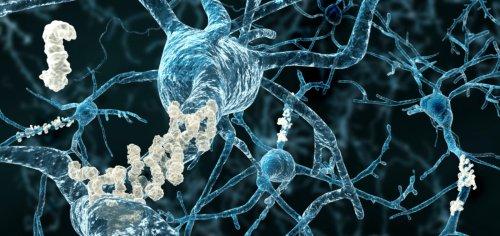 Trial failure dashes Biogen hopes for next Alzheimer's drug