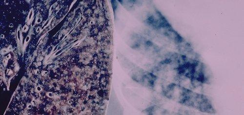 Takeda wins FDA approval for targeted lung cancer drug