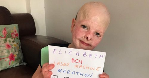 Girl who needs surgery every six months raising £130k for new treatment
