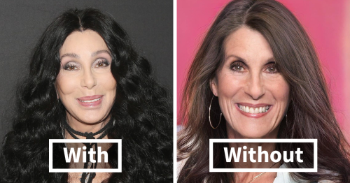 With The Help Of A.I., I Found Out What These Celebrities Would Look Like With No Plastic Surgery (21 Pics)