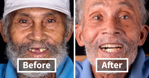 This Brazilian Dentist Fixes Poor People's Teeth For Free And Here Are The Amazing Results (31 New Pics)