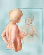 Breast Self-Exam