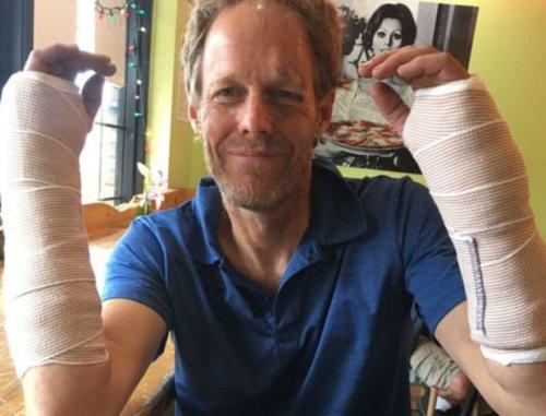 Professional Minnesota juggler Tuey Wilson breaks wrists during Duluth performance