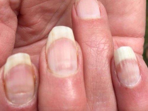 """Las """"uñas COVID"""" podrían ser tan útiles como una prueba de anticuerpos para demostrar una infección previa"""