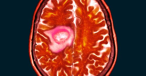 "A ""remarkable"" finding links a common vitamin to fighting brain cancer"