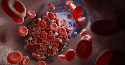 Does the Covid-19 vaccine cause blood clots? Science explains the risks