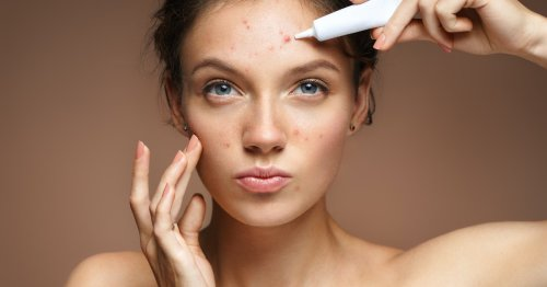 7 Reasons You Might Be Breaking Out If You're Dealing With Adult Acne