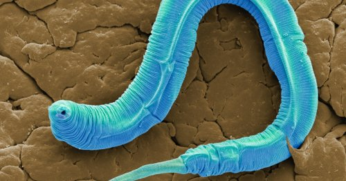"""A trick to activating """"anti-aging"""" proteins in worms could exist in humans, too"""