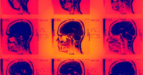Diet created by scientists found to strengthen the brain in 2 critical ways
