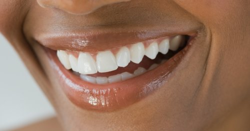 5 Expert-Approved Ways To Whiten Teeth At Home — Fast