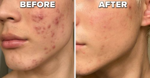 25 Skincare Products That Worked So Well That Reviewers Said Other People Noticed