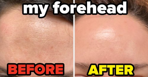 I Just Learned A New Way To Care For My Face, And My Skin Is Actually Improving — Here's What I Did
