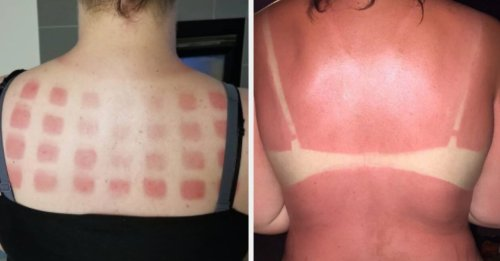 16 Reasons Wearing Sunscreen Is Completely Unnecessary