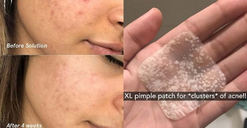 25 Skincare Products People With Adult Acne Swear By